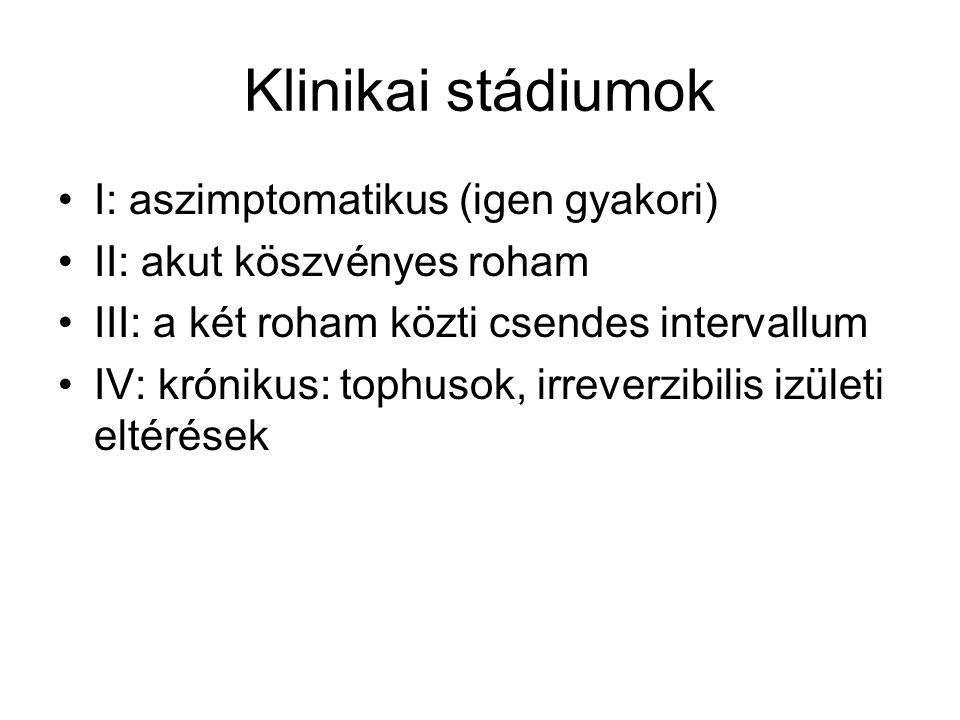 Klinikai stádiumok I: aszimptomatikus (igen gyakori) II: akut köszvényes roham III: a két roham közti csendes intervallum IV: krónikus: tophusok, irre