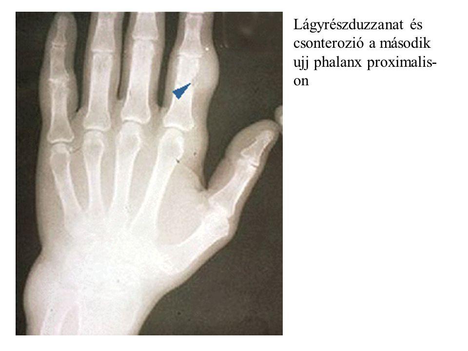 Lágyrészduzzanat és csonterozió a második ujj phalanx proximalis- on