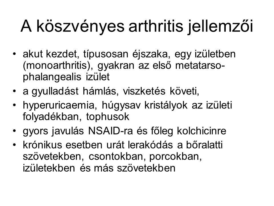 A köszvényes arthritis jellemzői akut kezdet, típusosan éjszaka, egy izületben (monoarthritis), gyakran az első metatarso- phalangealis izület a gyull