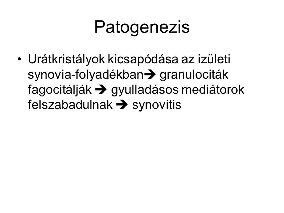 Patogenezis Urátkristályok kicsapódása az izületi synovia-folyadékban  granulociták fagocitálják  gyulladásos mediátorok felszabadulnak  synovitis