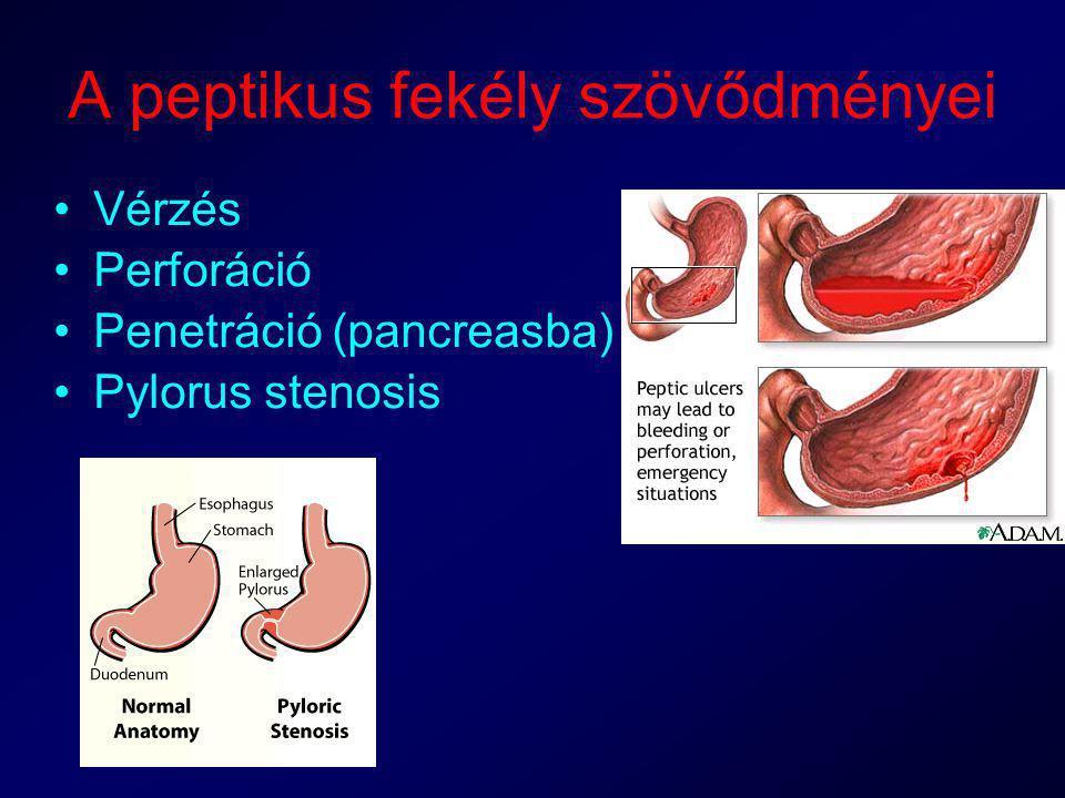 A peptikus fekély szövődményei Vérzés Perforáció Penetráció (pancreasba) Pylorus stenosis