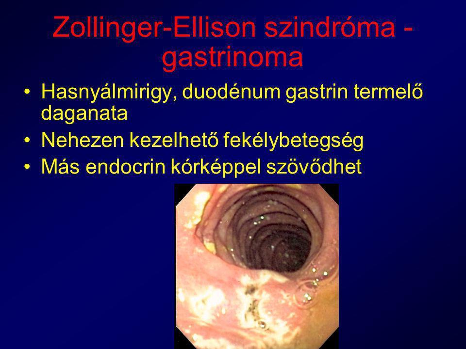 Zollinger-Ellison szindróma - gastrinoma Hasnyálmirigy, duodénum gastrin termelő daganata Nehezen kezelhető fekélybetegség Más endocrin kórképpel szöv