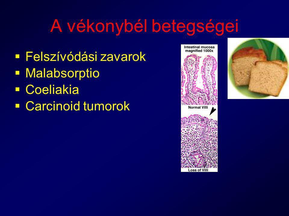 A vékonybél betegségei  Felszívódási zavarok  Malabsorptio  Coeliakia  Carcinoid tumorok