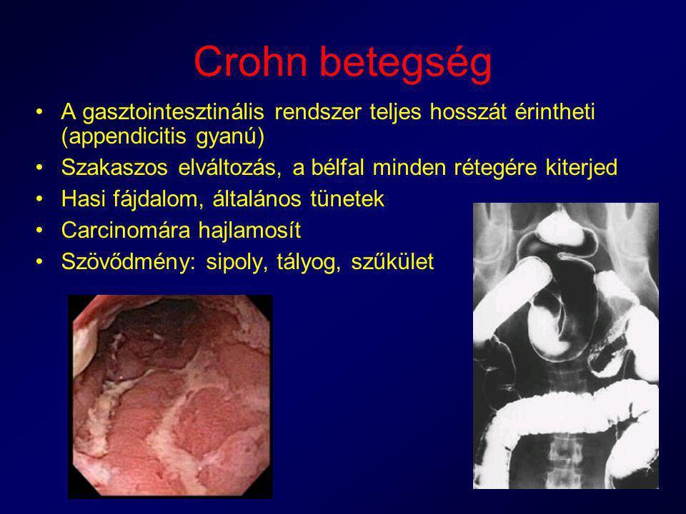 Crohn betegség A gasztointesztinális rendszer teljes hosszát érintheti (appendicitis gyanú) Szakaszos elváltozás, a bélfal minden rétegére kiterjed Ha