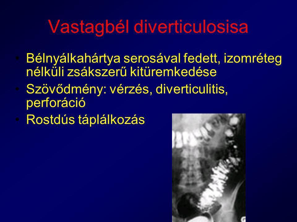 Vastagbél diverticulosisa Bélnyálkahártya serosával fedett, izomréteg nélküli zsákszerű kitüremkedése Szövődmény: vérzés, diverticulitis, perforáció R