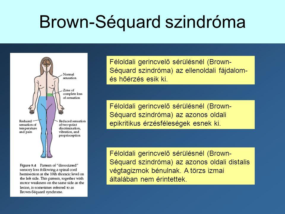 Féloldali gerincvelő sérülésnél (Brown- Séquard szindróma) az azonos oldali epikritikus érzésféleségek esnek ki. Féloldali gerincvelő sérülésnél (Brow