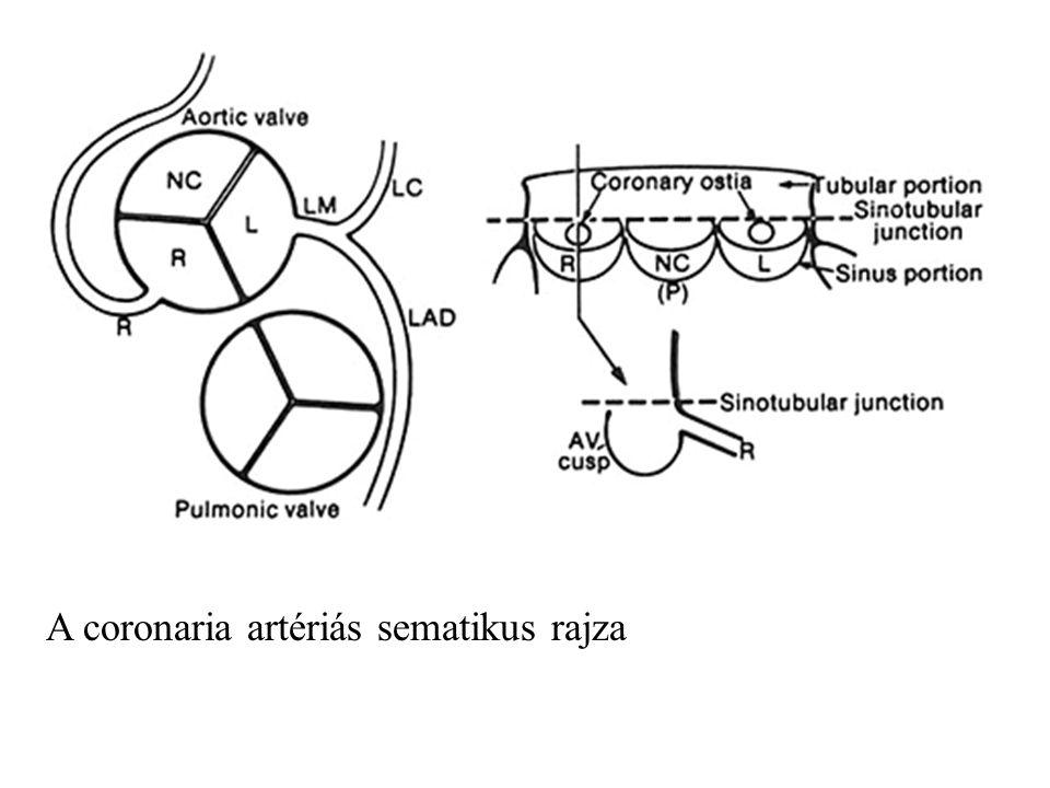 A coronaria artériás sematikus rajza