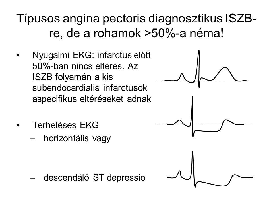 Típusos angina pectoris diagnosztikus ISZB- re, de a rohamok >50%-a néma! Nyugalmi EKG: infarctus előtt 50%-ban nincs eltérés. Az ISZB folyamán a kis