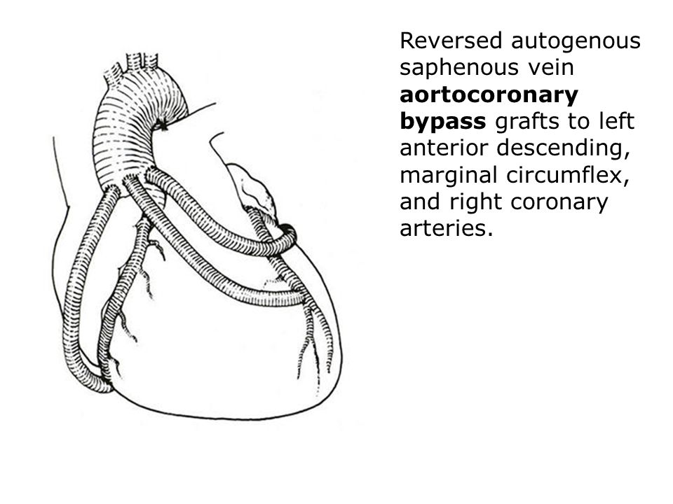 Reversed autogenous saphenous vein aortocoronary bypass grafts to left anterior descending, marginal circumflex, and right coronary arteries.