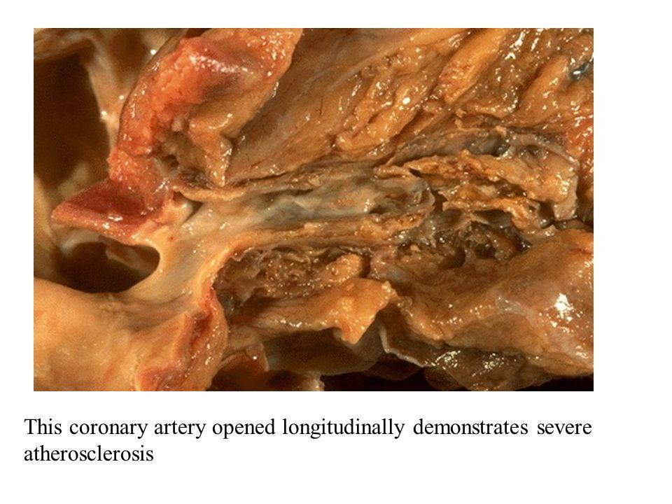 This coronary artery opened longitudinally demonstrates severe atherosclerosis