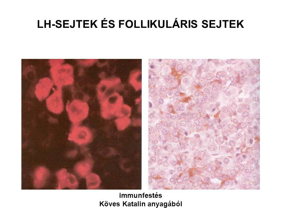 LH-SEJTEK ÉS FOLLIKULÁRIS SEJTEK immunfestés Köves Katalin anyagából