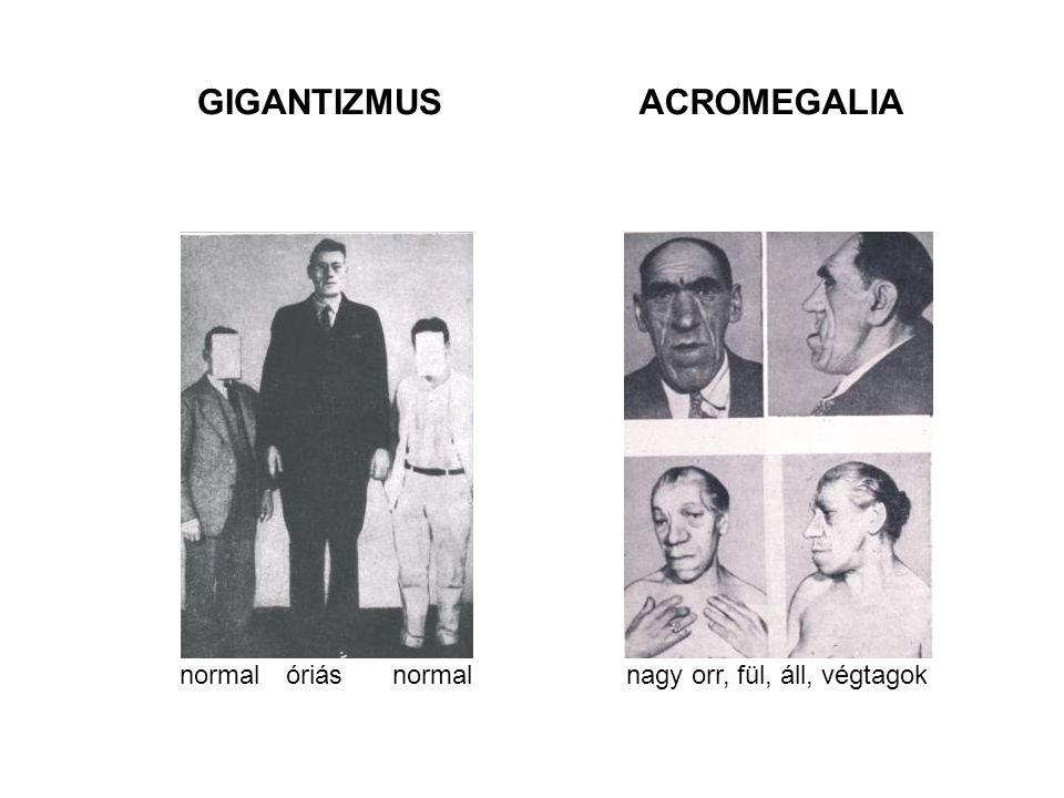 GIGANTIZMUSACROMEGALIA normalóriásnormalnagy orr, fül, áll, végtagok