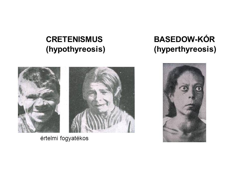CRETENISMUS (hypothyreosis) BASEDOW-KÓR (hyperthyreosis) értelmi fogyatékos