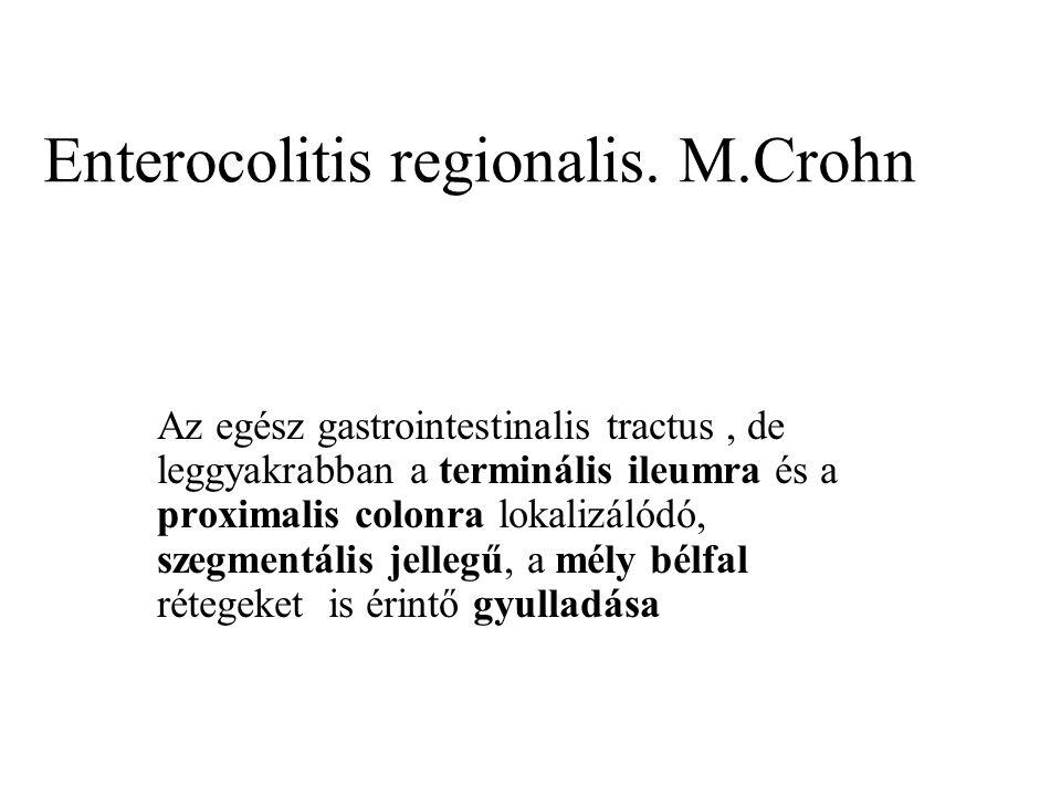 Enterocolitis regionalis. M.Crohn Az egész gastrointestinalis tractus, de leggyakrabban a terminális ileumra és a proximalis colonra lokalizálódó, sze