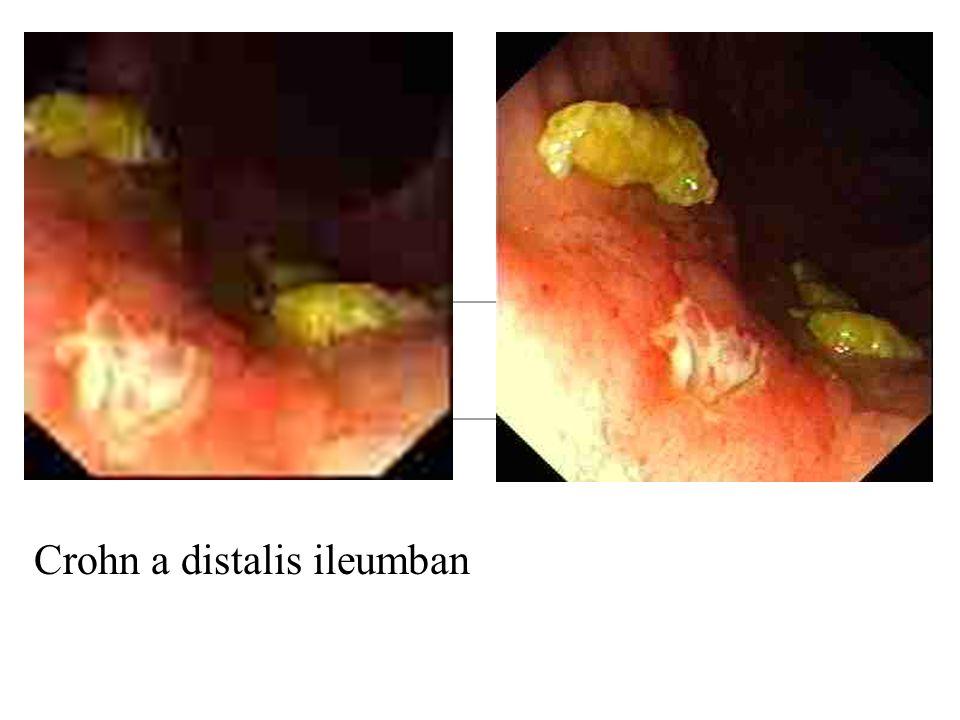 Crohn a distalis ileumban