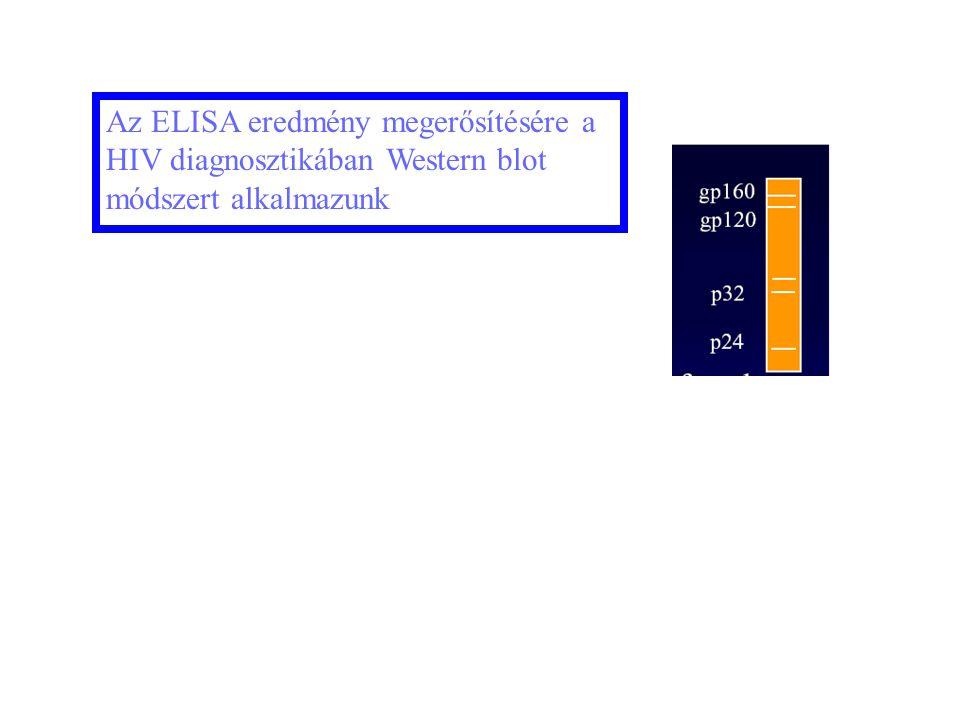 20 Az ELISA eredmény megerősítésére a HIV diagnosztikában Western blot módszert alkalmazunk