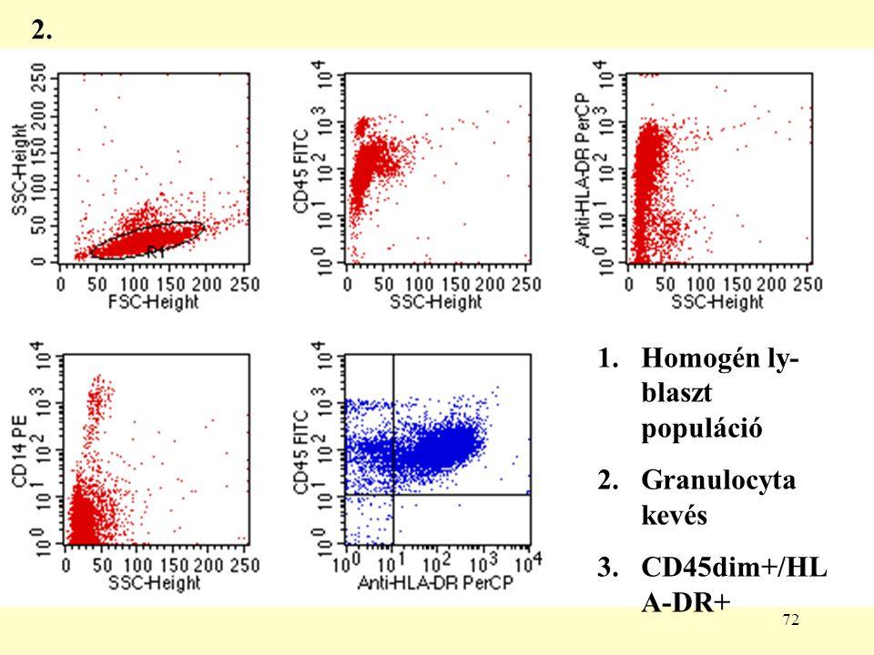 72 1.Homogén ly- blaszt populáció 2.Granulocyta kevés 3.CD45dim+/HL A-DR+ 2.