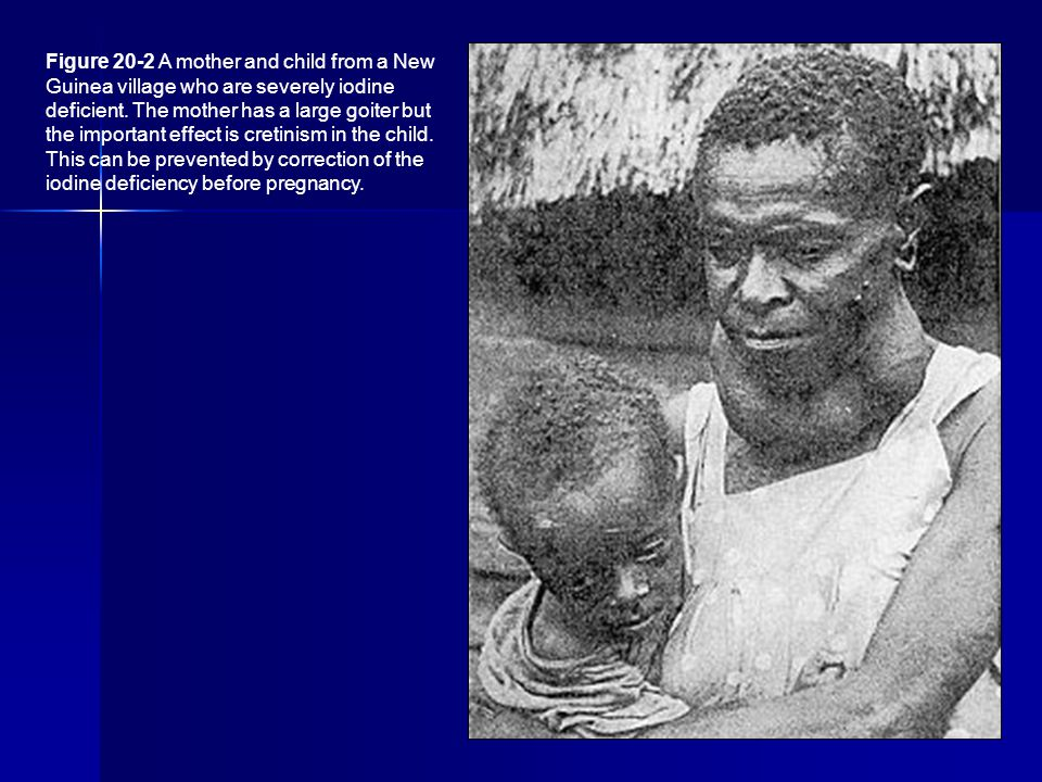 Figure 20-2 A mother and child from a New Guinea village who are severely iodine deficient. The mother has a large goiter but the important effect is