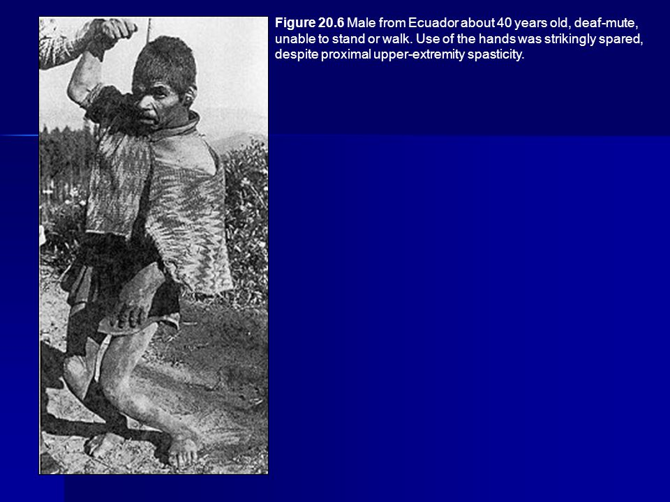 Figure 20.6 Male from Ecuador about 40 years old, deaf-mute, unable to stand or walk. Use of the hands was strikingly spared, despite proximal upper-e
