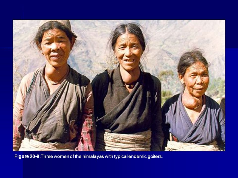Figure 20-9.Three women of the himalayas with typical endemic goiters.