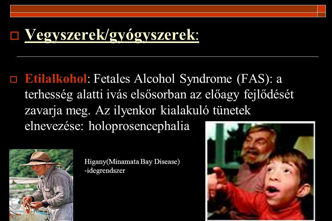  Vegyszerek/gyógyszerek:  Etilalkohol: Fetales Alcohol Syndrome (FAS): a terhesség alatti ivás elsősorban az előagy fejlődését zavarja meg. Az ilyen