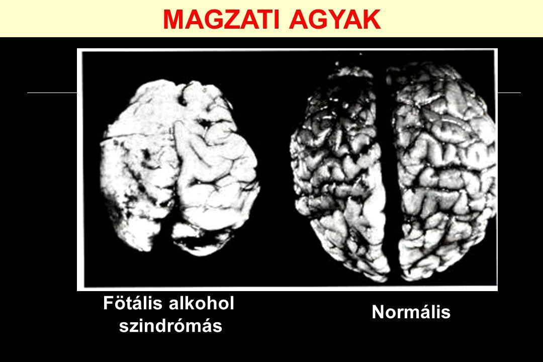 Normális Fötális alkohol szindrómás MAGZATI AGYAK