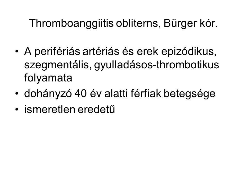 Thromboanggiitis obliterns, Bürger kór. A perifériás artériás és erek epizódikus, szegmentális, gyulladásos-thrombotikus folyamata dohányzó 40 év alat