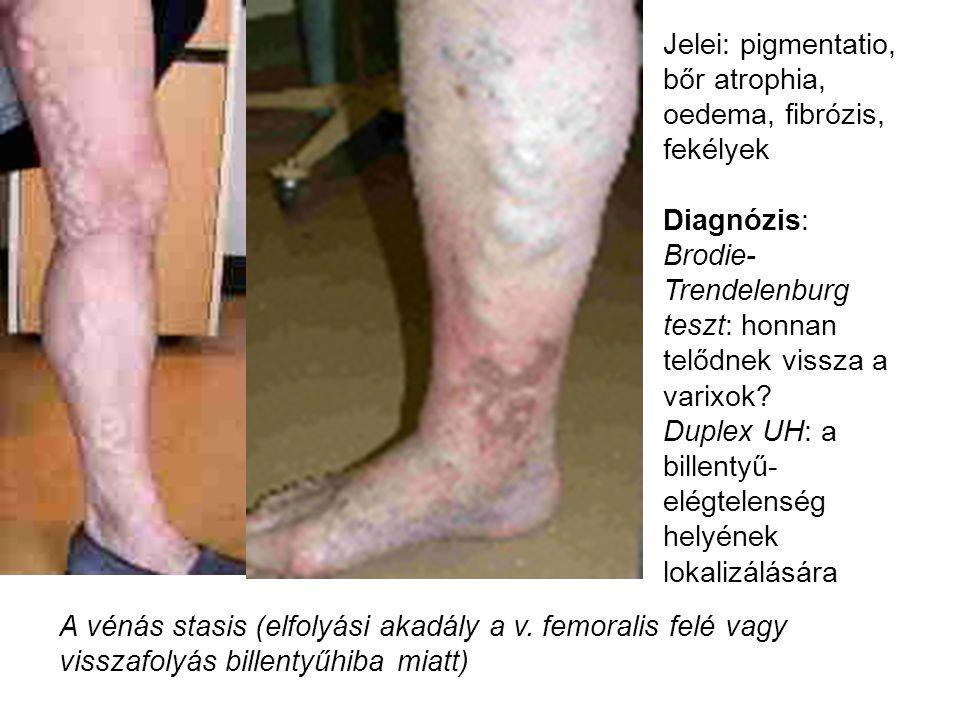 Jelei: pigmentatio, bőr atrophia, oedema, fibrózis, fekélyek Diagnózis: Brodie- Trendelenburg teszt: honnan telődnek vissza a varixok? Duplex UH: a bi