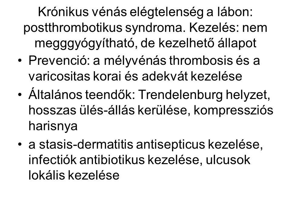 Krónikus vénás elégtelenség a lábon: postthrombotikus syndroma. Kezelés: nem megggyógyítható, de kezelhető állapot Prevenció: a mélyvénás thrombosis é