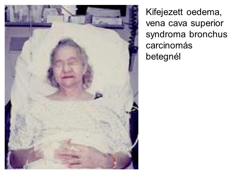 Kifejezett oedema, vena cava superior syndroma bronchus carcinomás betegnél