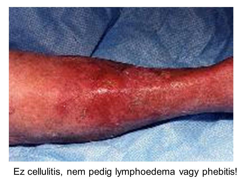 Ez cellulitis, nem pedig lymphoedema vagy phebitis!