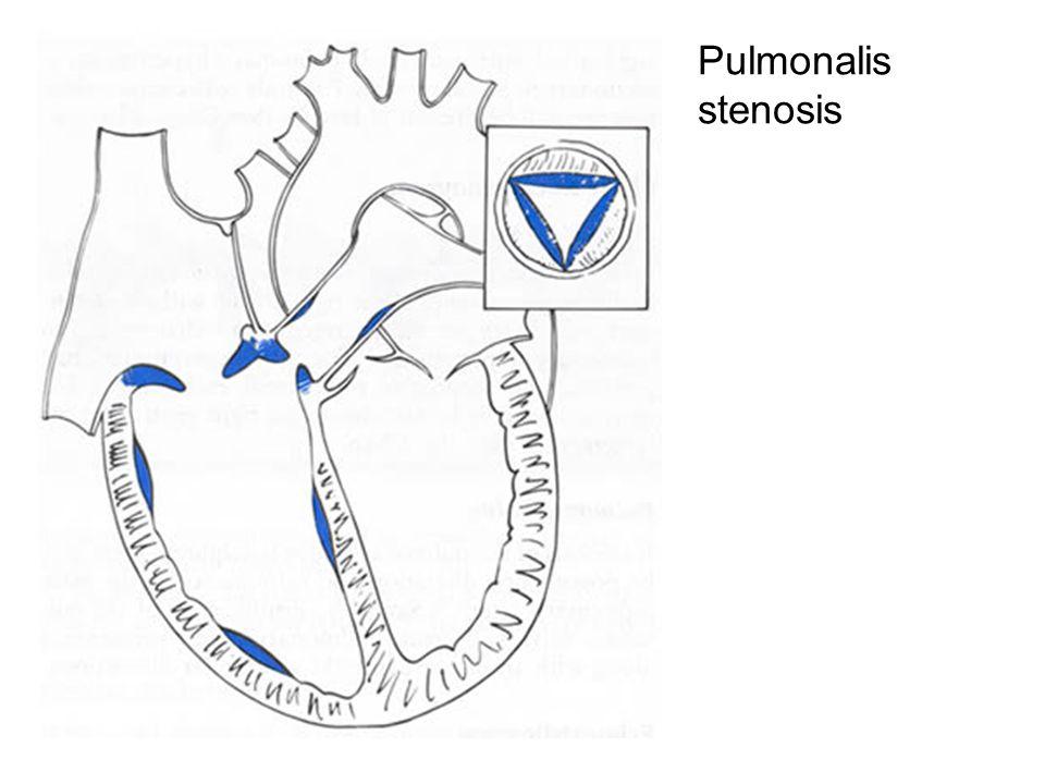 Pulmonalis stenosis