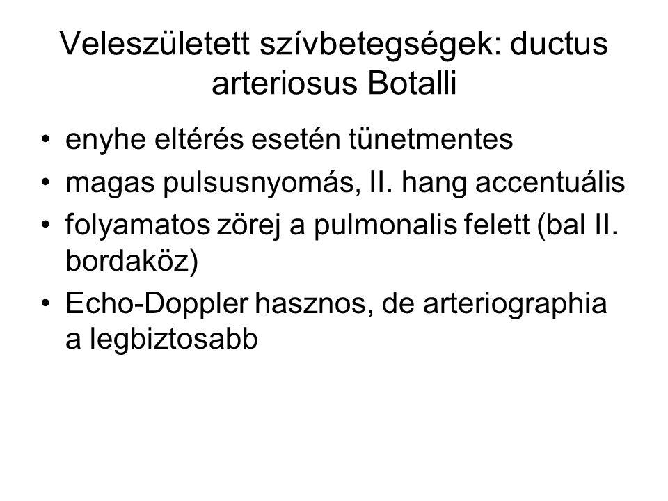 Veleszületett szívbetegségek: ductus arteriosus Botalli enyhe eltérés esetén tünetmentes magas pulsusnyomás, II. hang accentuális folyamatos zörej a p