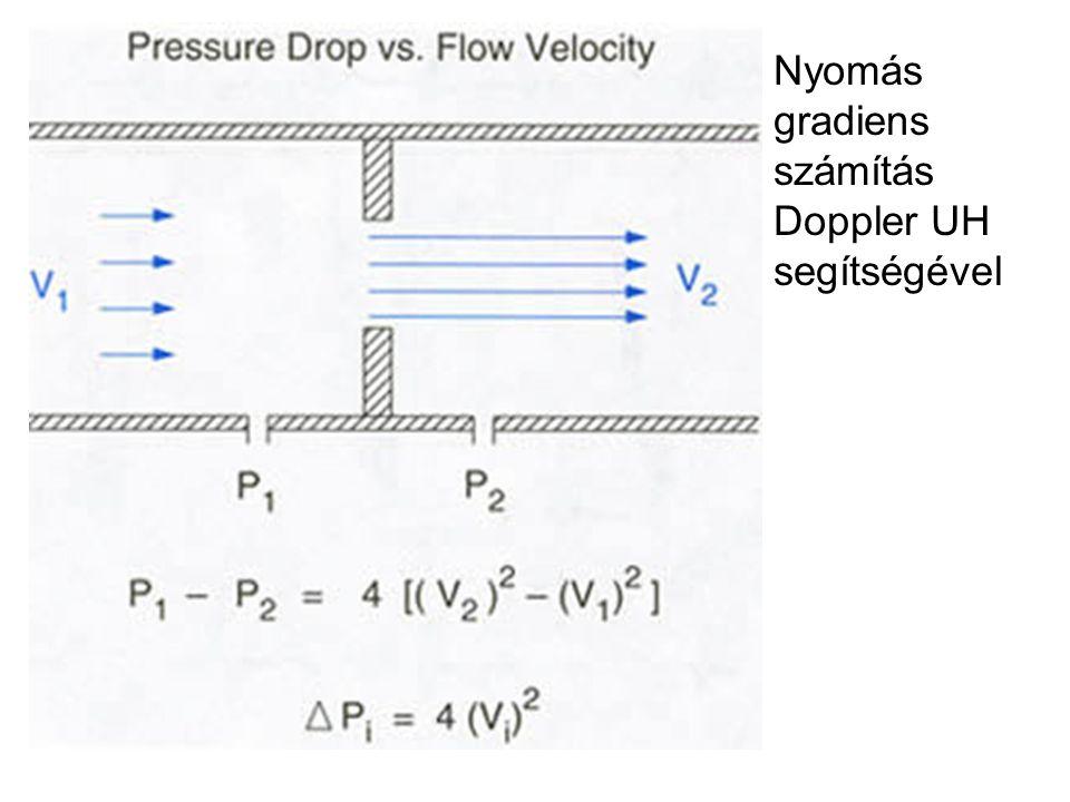 Nyomás gradiens számítás Doppler UH segítségével