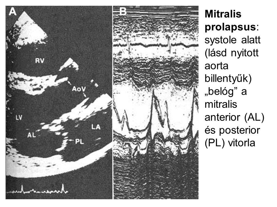 """Mitralis prolapsus: systole alatt (lásd nyitott aorta billentyűk) """"belóg"""" a mitralis anterior (AL) és posterior (PL) vitorla"""
