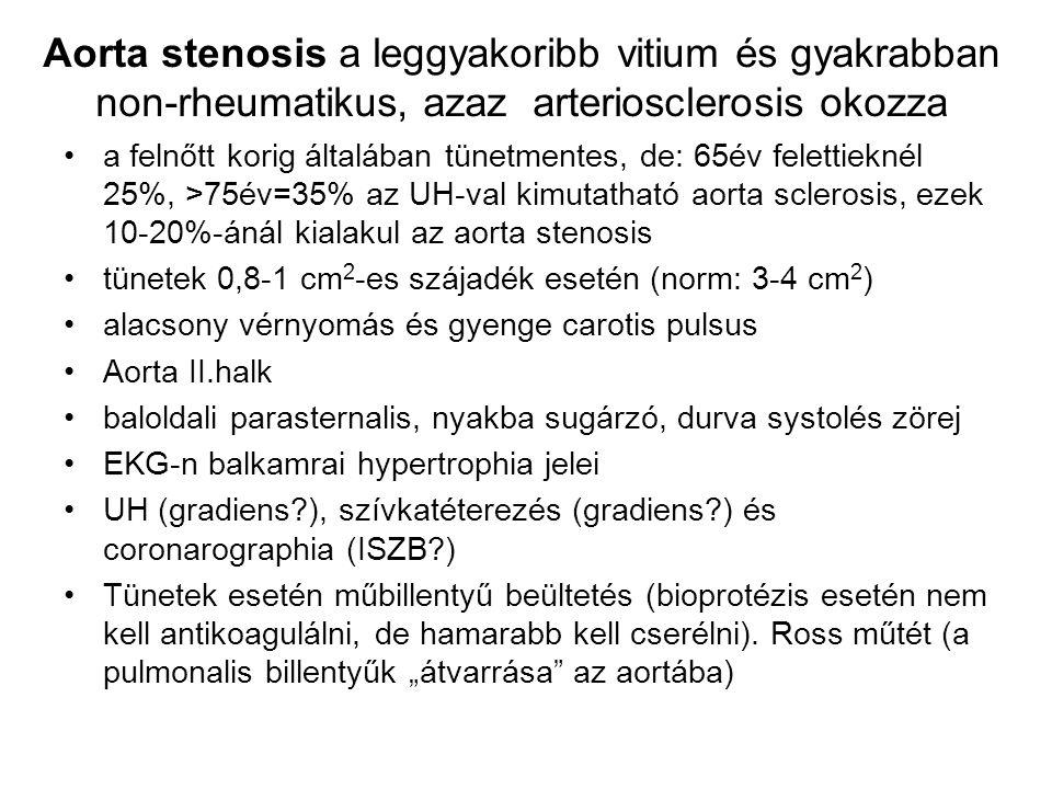 Aorta stenosis a leggyakoribb vitium és gyakrabban non-rheumatikus, azaz arteriosclerosis okozza a felnőtt korig általában tünetmentes, de: 65év felet