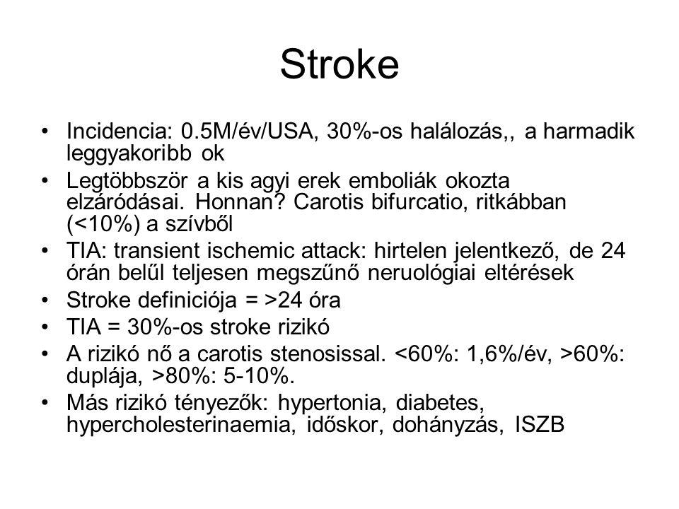 Stroke Incidencia: 0.5M/év/USA, 30%-os halálozás,, a harmadik leggyakoribb ok Legtöbbször a kis agyi erek emboliák okozta elzáródásai. Honnan? Carotis