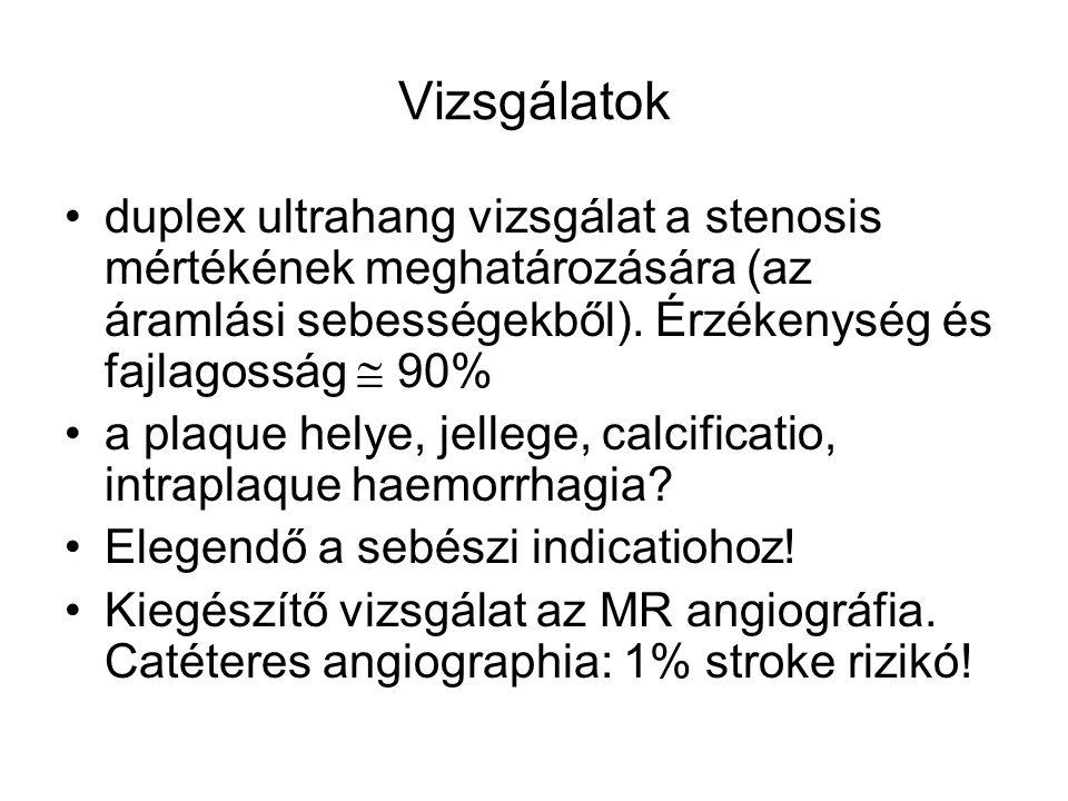 Vizsgálatok duplex ultrahang vizsgálat a stenosis mértékének meghatározására (az áramlási sebességekből). Érzékenység és fajlagosság  90% a plaque he