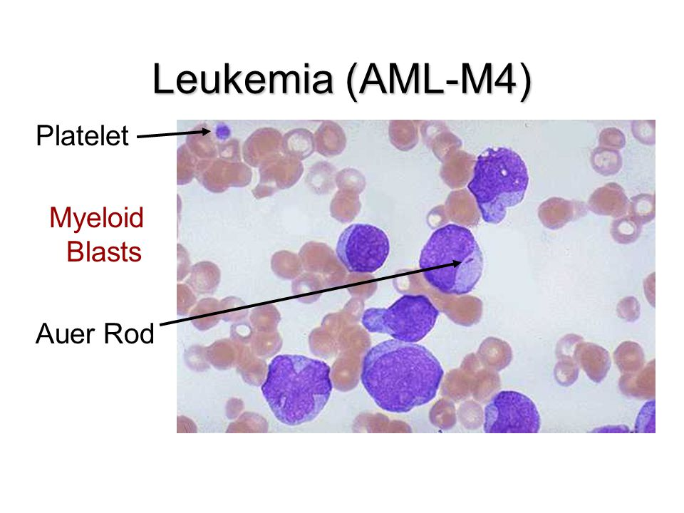 Leukemia (AML-M4) Platelet Myeloid Blasts Auer Rod