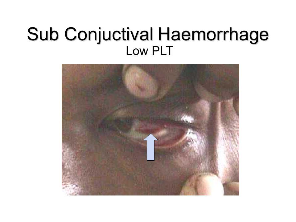 Sub Conjuctival Haemorrhage Low PLT