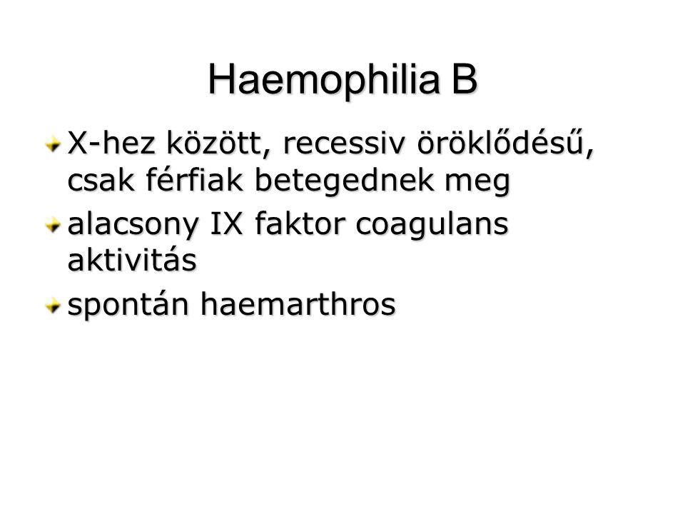 Haemophilia B X-hez között, recessiv öröklődésű, csak férfiak betegednek meg alacsony IX faktor coagulans aktivitás spontán haemarthros