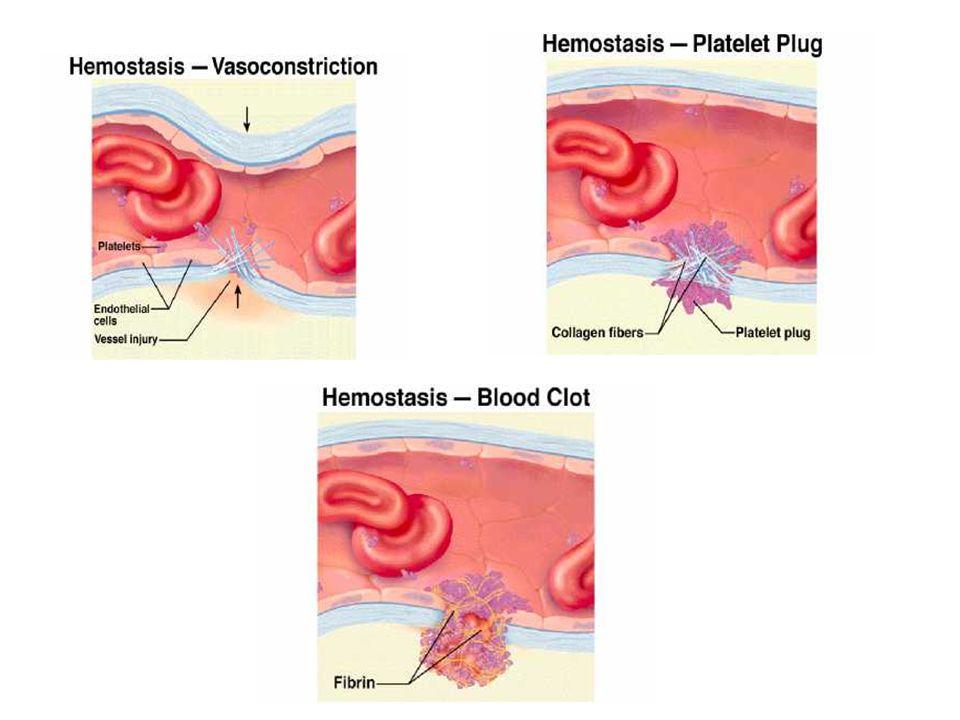 Haemolytikus uraemiás syndroma microangiopathiás haemolysis thrombocytopenia, veseelégtelenség emelkedett LDH szint normális alvadási tesztek nincsenek neurológiai jelek