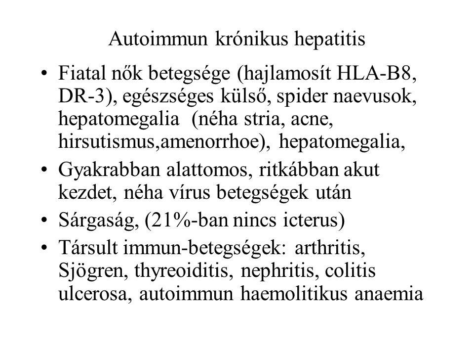 Autoimmun krónikus hepatitis Fiatal nők betegsége (hajlamosít HLA-B8, DR-3), egészséges külső, spider naevusok, hepatomegalia (néha stria, acne, hirsu