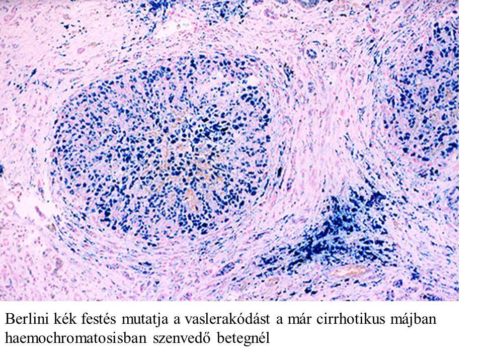 Berlini kék festés mutatja a vaslerakódást a már cirrhotikus májban haemochromatosisban szenvedő betegnél