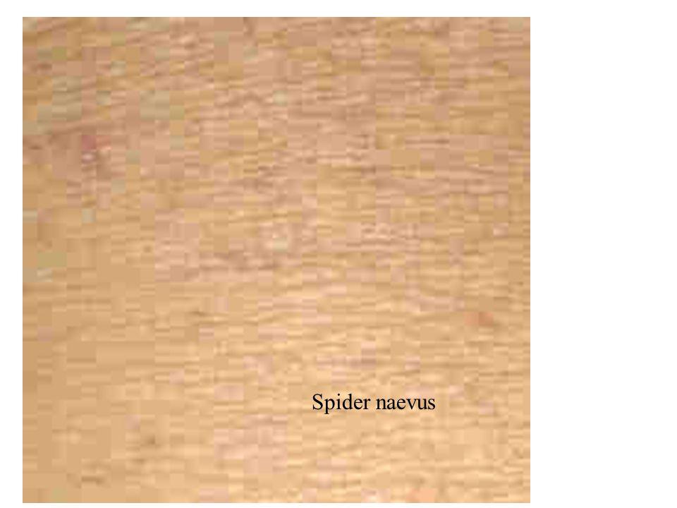 Spider naevus