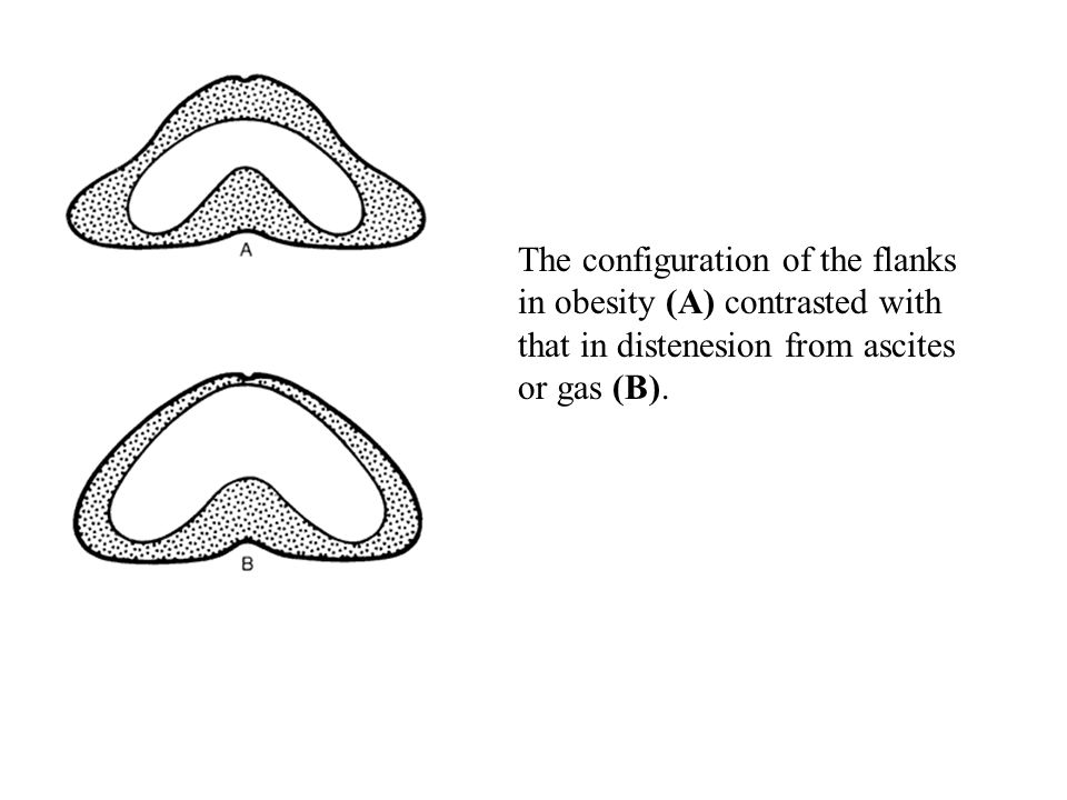 The configuration of the flanks in obesity (A) contrasted with that in distenesion from ascites or gas (B).