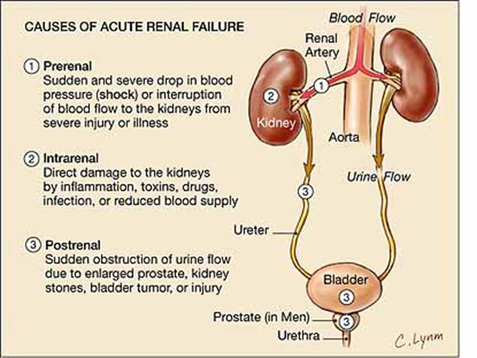 AV prerenális okai  Jellemzője a vese véráramlásának csökkenése  Leggyakoribb okok:  Hypovolaemia  vérzés, folyadékvesztés , folyadékfelvétel , diurézis  Hypotonia  Vasodilatáció miatt (sepsis, anaphylaxa, vérnyomás csökkentők)  Csökkent perctérfogat (szívelégtelenség; valójában volumen többlet)  ACE gátlók vagy ARB-k *  Efferens arteriolán hatva módosítják a vese véráramlását (RBF)  NSAID  Afferens arteriola konstrikció  RBF   Renovasculáris  Arteria renális stenosis, fibromusculáris dysplasia, hepatorenális szindróma * ARB: Angiotensin Receptor Blokkoló