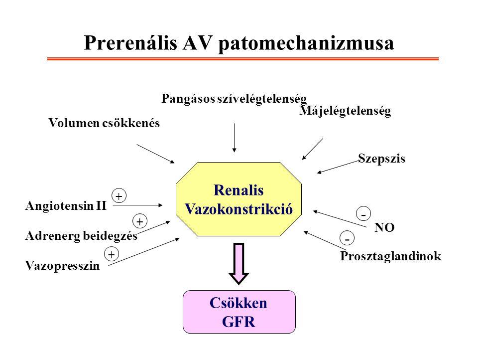 Prerenális AV patomechanizmusa Renalis Vazokonstrikció Csökken GFR Angiotensin II Adrenerg beidegzés Vazopresszin + + + NO Prosztaglandinok - - Volume