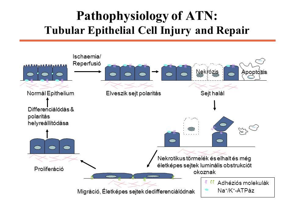Pathophysiology of ATN: Tubular Epithelial Cell Injury and Repair Elveszik sejt polaritás Normál Epithelium Migráció, Életképes sejtek dedifferenciáló