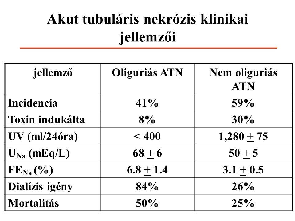 Akut tubuláris nekrózis klinikai jellemzői jellemzőOliguriás ATNNem oliguriás ATN Incidencia41%59% Toxin indukálta8%30% UV (ml/24óra)< 4001,280 + 75 U